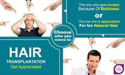 Top 9 Ways That Make Your Hair Transplant Decision Easier