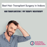 Hair Transplant Surgeons in Indore