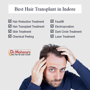 Hair Transplant Surgeons in Indore | drmohanas.in